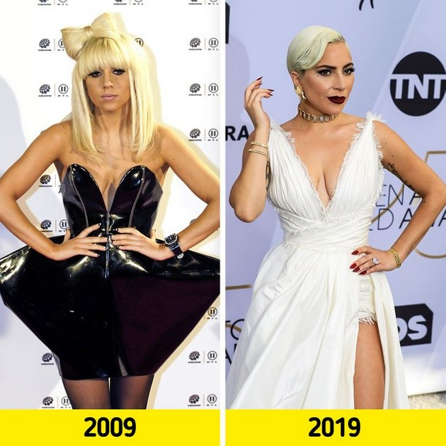 "Lady Gaga ""Before and after"" photo comparisons"