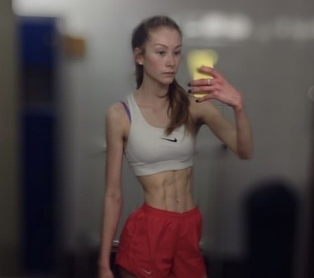 She weighed 72 pounds and is now a bodybuilder - A 21-year-old girl beat bulimia with exercise 3
